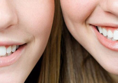 Closeup image of two smiling women focused on their teeth