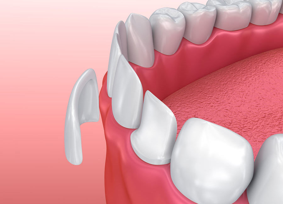A picture of dental veneers west Auckland