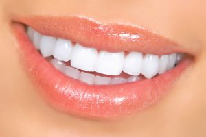 Zoom! Teeth Whitening close up