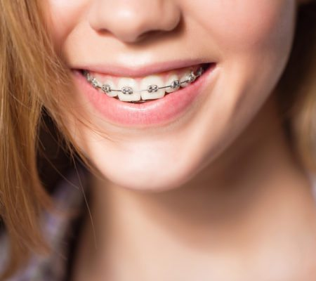 Portrait of teen girl showing braces