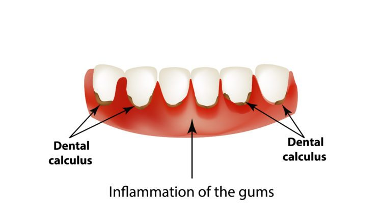 Gingivitis diagram