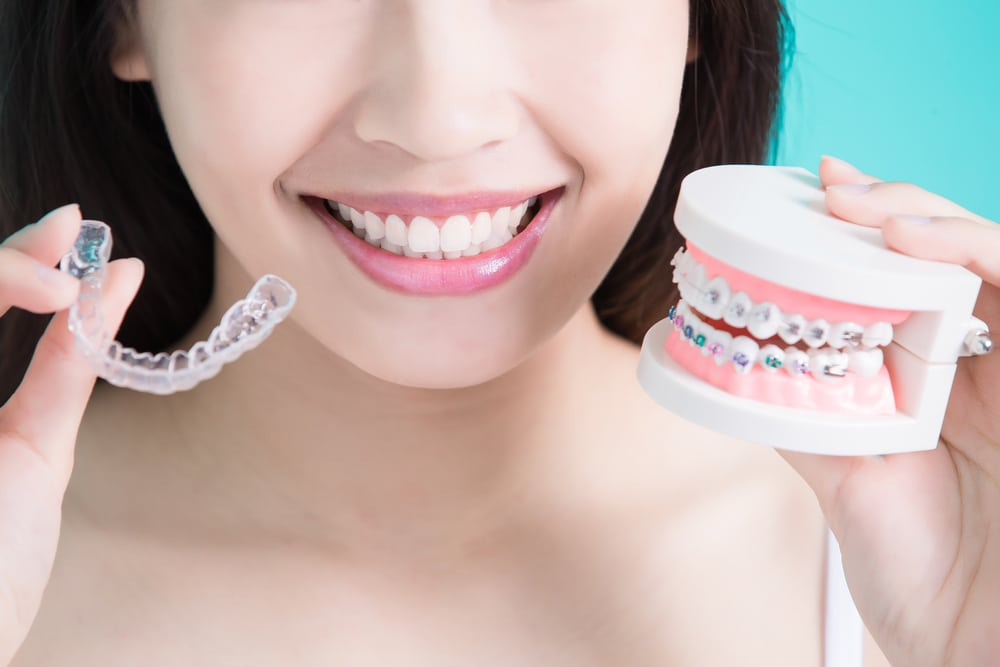 Things That Determine Invisalign Costs in Nz
