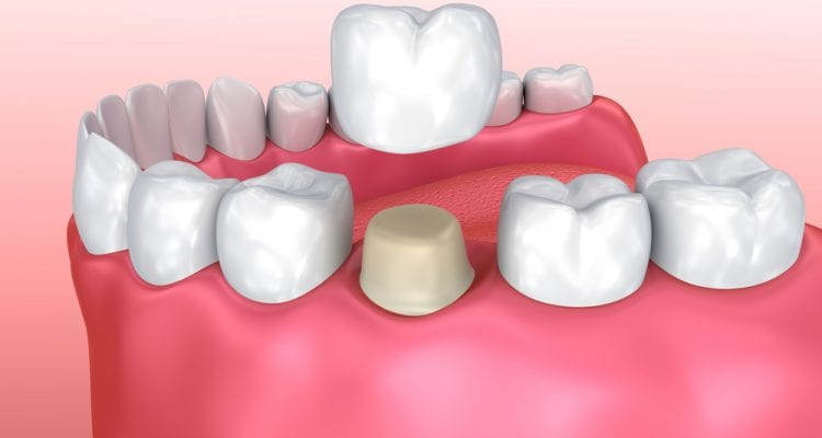 Dental crown installation process, Medically accurate 3d illustration
