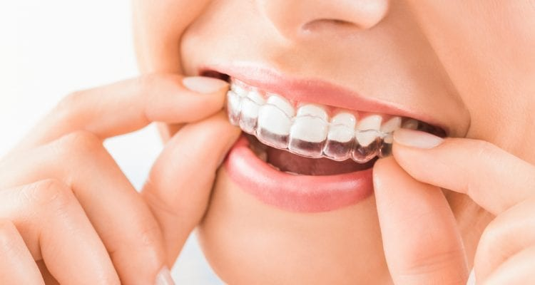 Woman wearing orthodontic silicone trainer. Invisible braces aligner. Mobile orthodontic appliance for dental correction