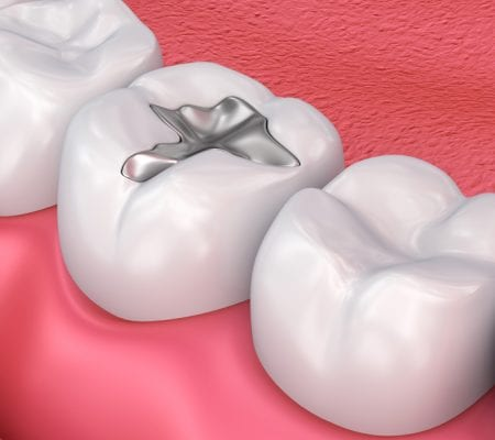 Metal dental fillings, medically accurate 3D illustration