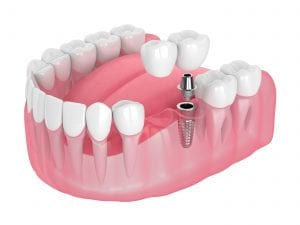 3d render of jaw with implant supported dental cantilever bridge isolated over white background